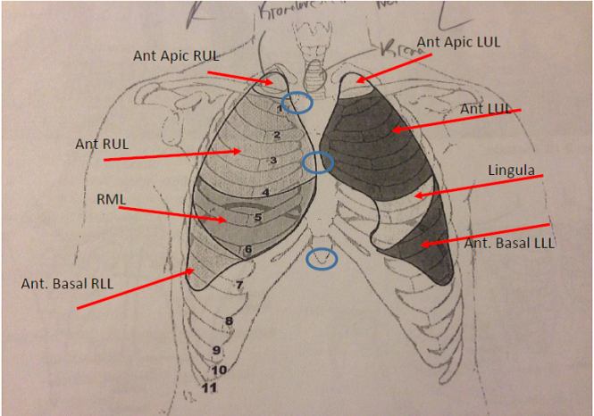 chest auscultation points