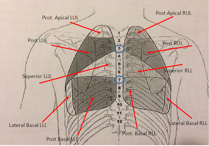 Lung Auscultation Physical Therapy Reviewer