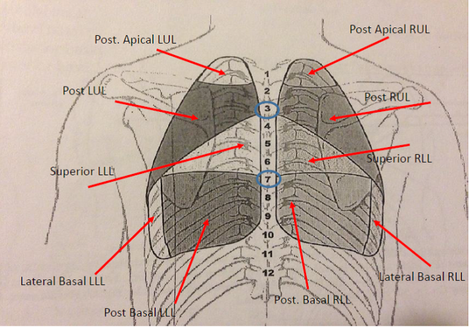 lung auscultation  u2013 physical therapy reviewer