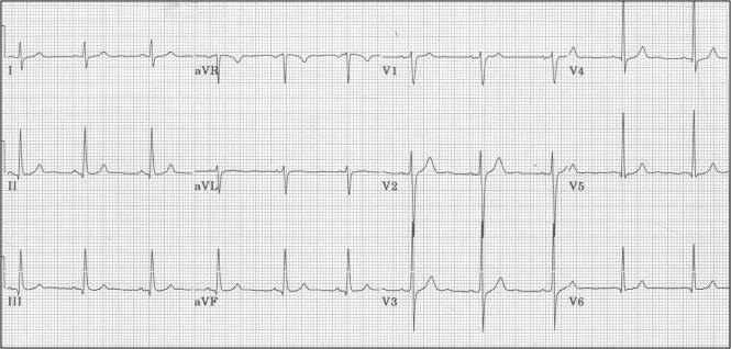 Normal 12_Lead ECG (1)