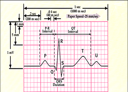 how to read an ecg  u2013 physical therapy reviewer